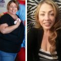 Before and After Pictures Gastric Surgery Mexico