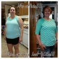 Before and After Pictures Gastric Sleeve